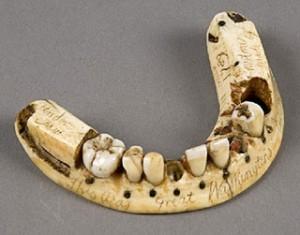 The-antique-dentures.